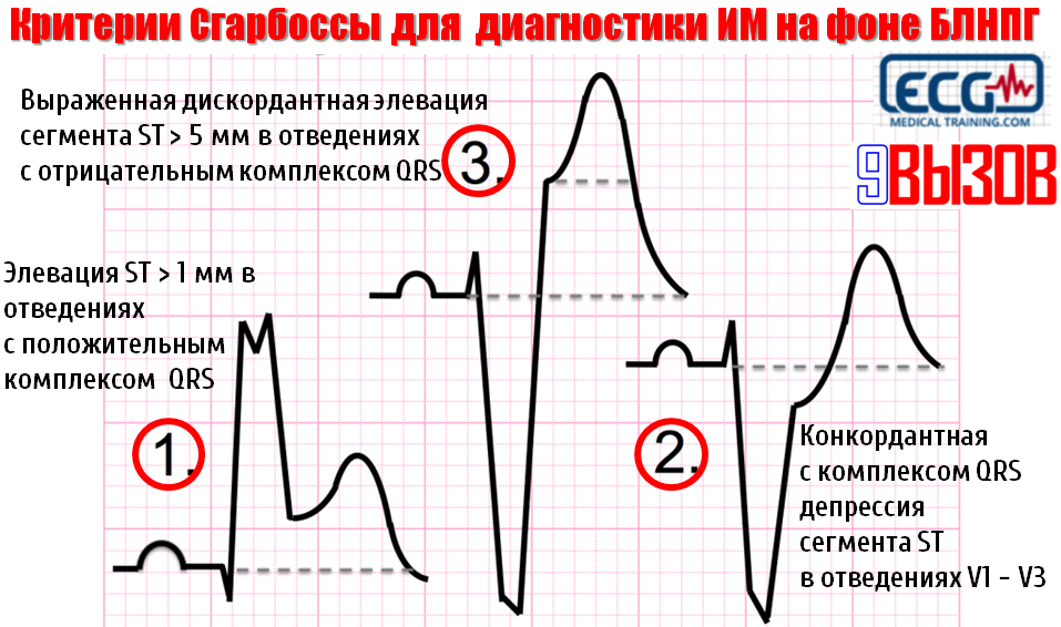 Критерии Сгарбоссы