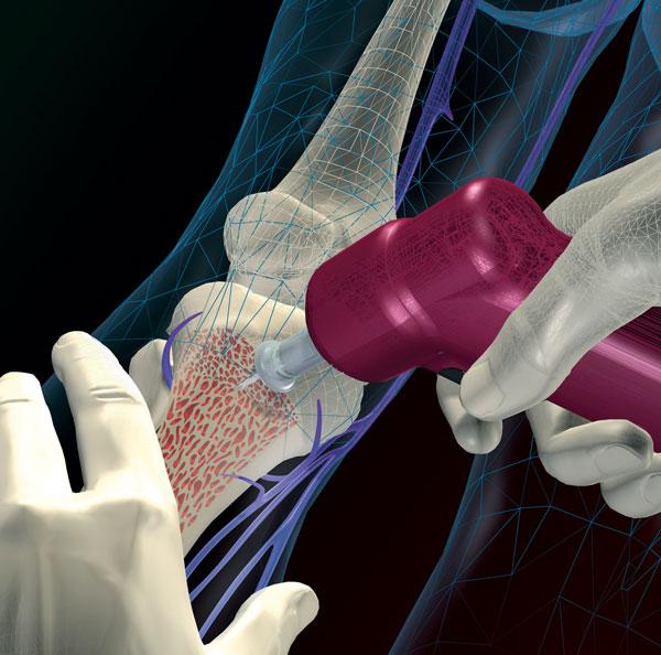 Установка канюли через бугристость большеберцовой кости с помощью устройства EZ-IO