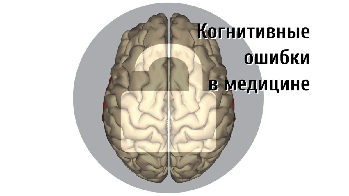 Когнитивные ошибки в медицине